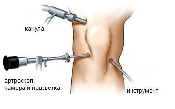Наложение тугой повязки на голеностопный сустав