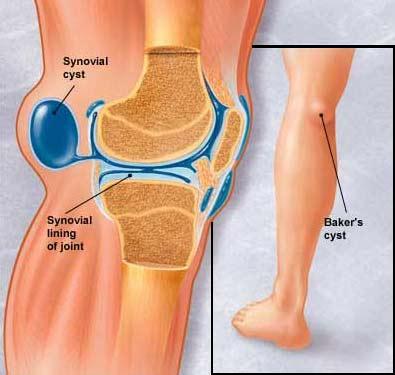 Что будет если не лечить кисту бейкера коленного сустава