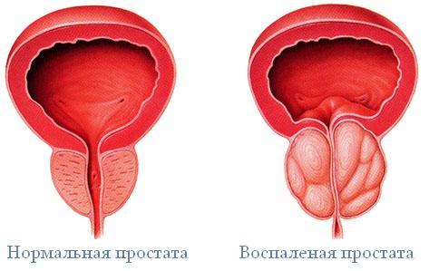 Анатомия: Бульбоуретральные железы. Анатомия простаты (предстательной железы). Кровоснабжение, иннервация, лимфатический отток от простаты || Предстательная железа латынь